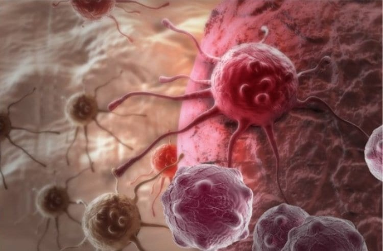 Photo of Israeli Researchers Say Cure For Melanoma is Around the Corner